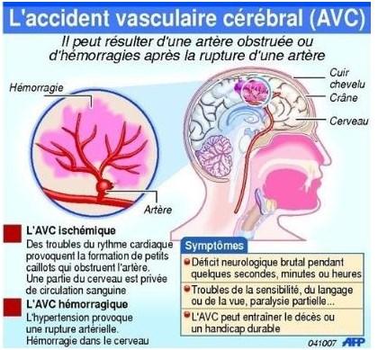 Accident vasculaire cérébrale