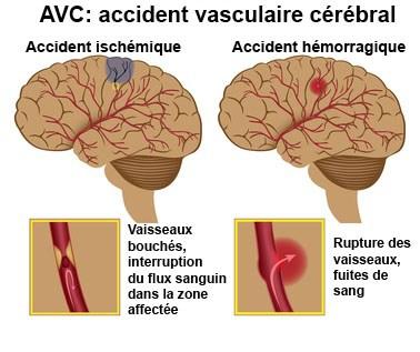 Accident ischémique et hémorragique
