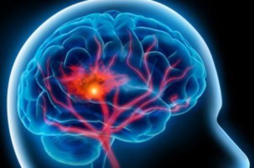 Article : L'accident vasculaire cérébral, un problème majeur de santé publique !